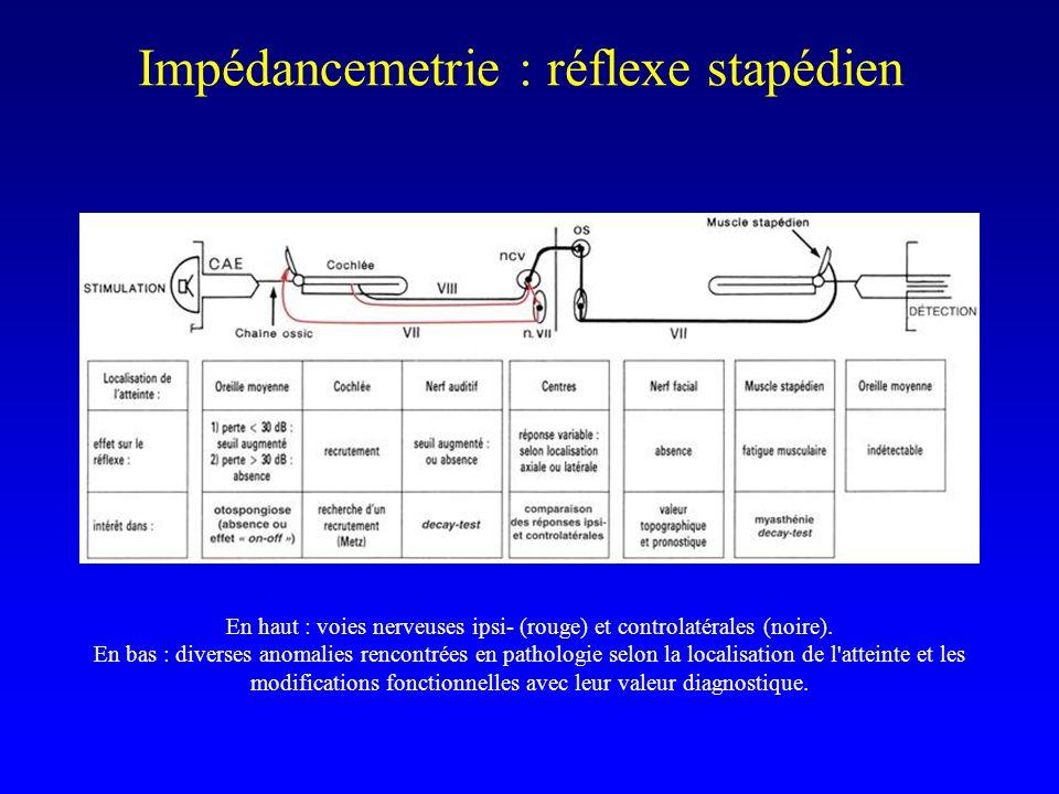 Impédancemetrie : réflexe stapédien En haut : voies nerveuses ipsi- (rouge) et controlatérales (noire). En bas : diverses anomalies rencontrées en pat