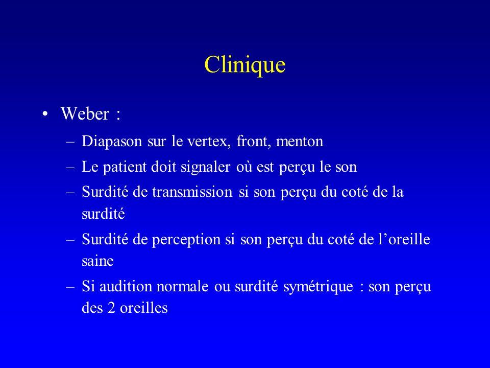 Clinique Weber : –Diapason sur le vertex, front, menton –Le patient doit signaler où est perçu le son –Surdité de transmission si son perçu du coté de