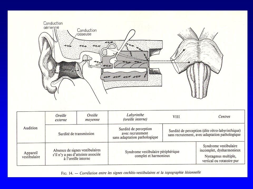 Distinguer surdité de transmission et surdité de perception Déterminer létiologie Paraclinique –Audiométrie tonale –Audiométrie vocale –Impédancemétrie –PEA –Otoémissions acoustiques –TDM rocher –IRM cérébrale –Tests génétiques Moyens {