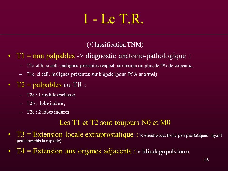 18 1 - Le T.R. ( Classification TNM) T1 = non palpables -> diagnostic anatomo-pathologique : –T1a et b, si cell. malignes présentes respect. sur moins