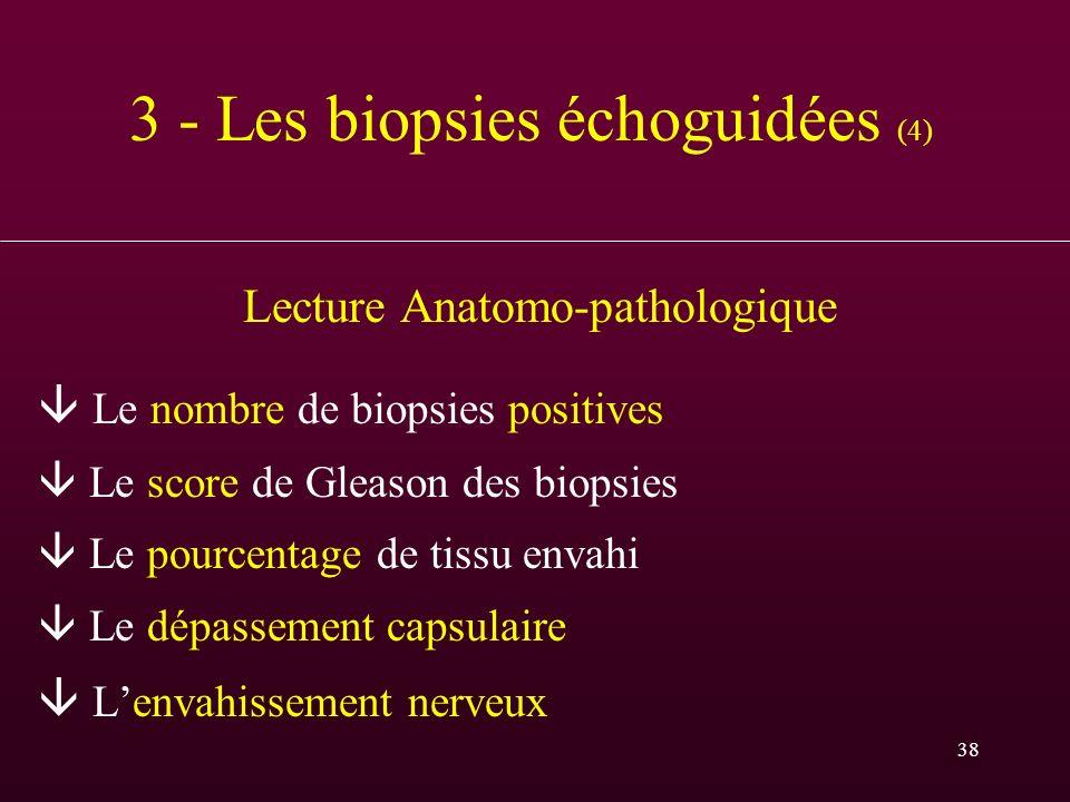 38 3 - Les biopsies échoguidées (4) Lecture Anatomo-pathologique Le nombre de biopsies positives Le score de Gleason des biopsies Le pourcentage de ti