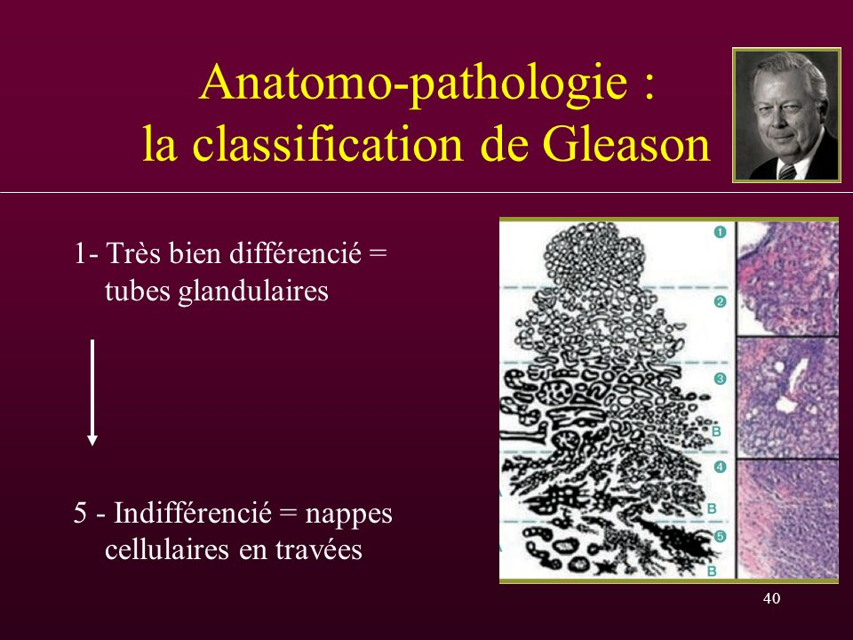 40 Anatomo-pathologie : la classification de Gleason 1- Très bien différencié = tubes glandulaires 5 - Indifférencié = nappes cellulaires en travées