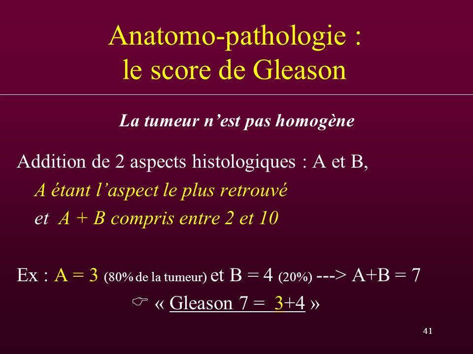 41 Anatomo-pathologie : le score de Gleason Addition de 2 aspects histologiques : A et B, A étant laspect le plus retrouvé et A + B compris entre 2 et