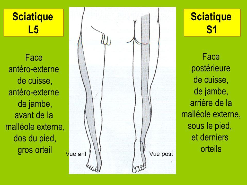 11 Sciatique L5 Face antéro-externe de cuisse, antéro-externe de jambe, avant de la malléole externe, dos du pied, gros orteil Sciatique S1 Face posté