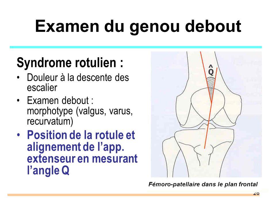 26 Examen du genou debout Syndrome rotulien : Douleur à la descente des escalier Examen debout : morphotype (valgus, varus, recurvatum) Position de la