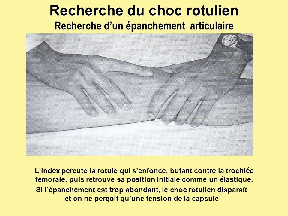 28 Recherche du choc rotulien Recherche dun épanchement articulaire Lindex percute la rotule qui senfonce, butant contre la trochlée fémorale, puis re