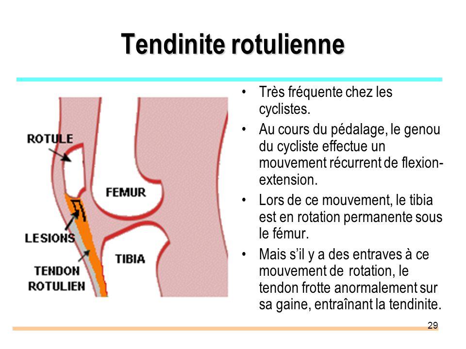 29 Tendinite rotulienne Très fréquente chez les cyclistes. Au cours du pédalage, le genou du cycliste effectue un mouvement récurrent de flexion- exte