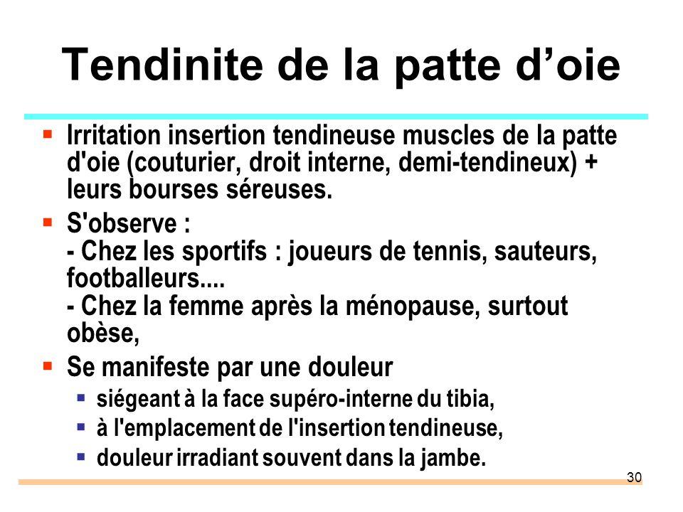30 Tendinite de la patte doie Irritation insertion tendineuse muscles de la patte d'oie (couturier, droit interne, demi-tendineux) + leurs bourses sér