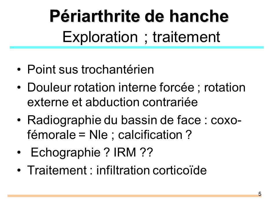 5 Périarthrite de hanche Périarthrite de hanche Exploration ; traitement Point sus trochantérien Douleur rotation interne forcée ; rotation externe et