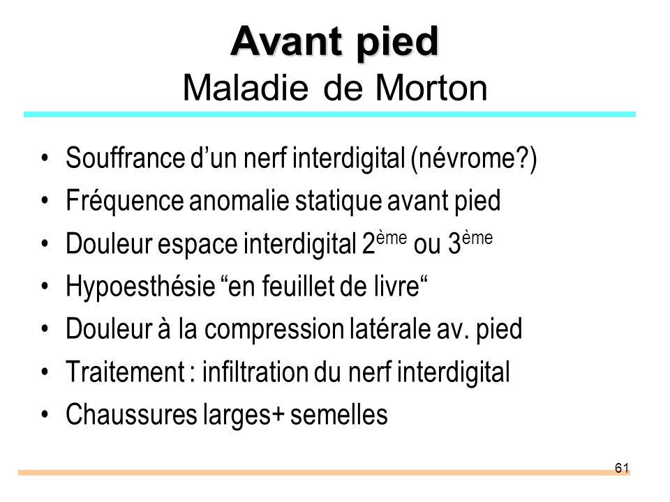 61 Avant pied Avant pied Maladie de Morton Souffrance dun nerf interdigital (névrome?) Fréquence anomalie statique avant pied Douleur espace interdigi