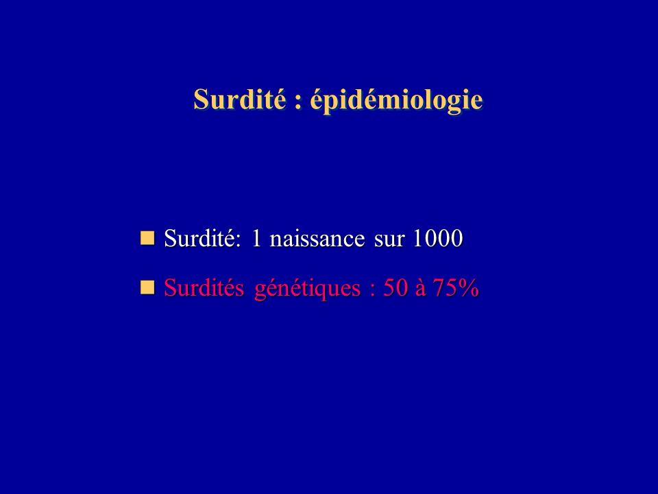 Surdité : épidémiologie Surdité: 1 naissance sur 1000 Surdité: 1 naissance sur 1000 Surdités génétiques : 50 à 75% Surdités génétiques : 50 à 75%