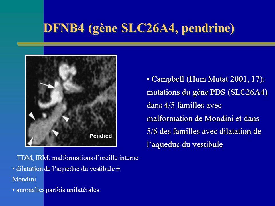 Pendred TDM, IRM: malformations doreille interne dilatation de laqueduc du vestibule ± Mondini anomalies parfois unilatérales DFNB4 (gène SLC26A4, pen