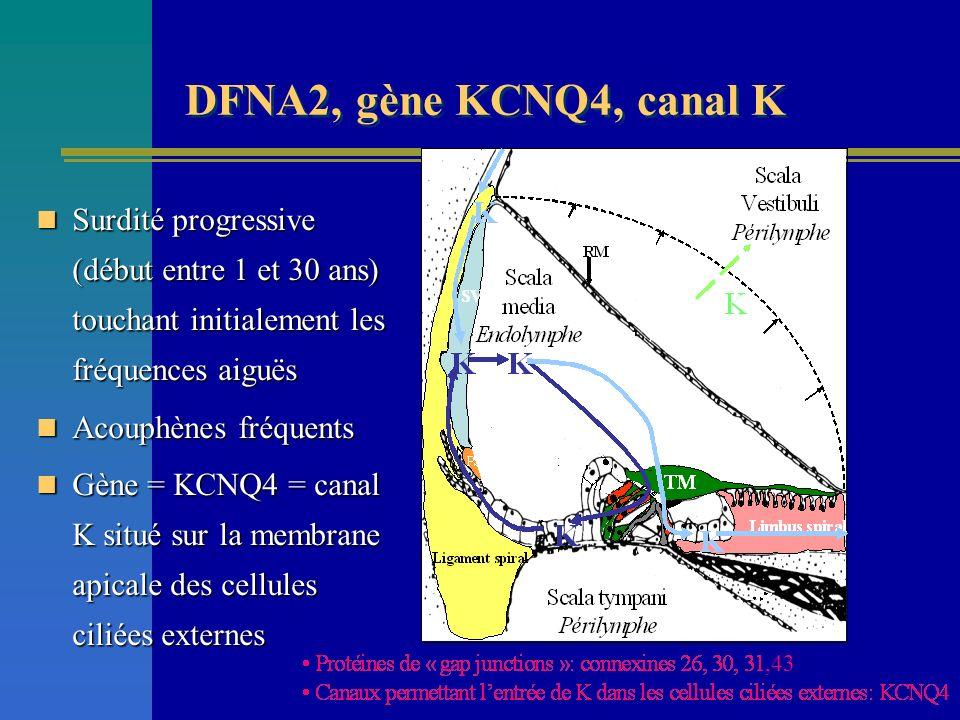 DFNA2, gène KCNQ4, canal K Surdité progressive (début entre 1 et 30 ans) touchant initialement les fréquences aiguës Surdité progressive (début entre