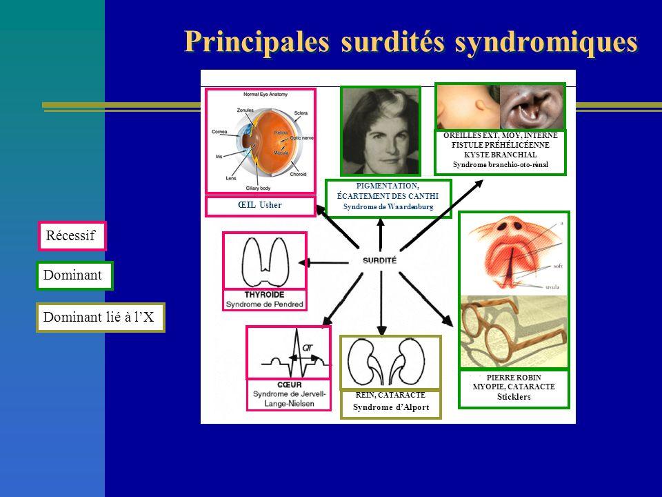 PIERRE ROBIN MYOPIE, CATARACTE Sticklers ŒIL Usher OREILLES EXT, MOY, INTERNE FISTULE PRÉHÉLICÉENNE KYSTE BRANCHIAL Syndrome branchio-oto-rénal Récess