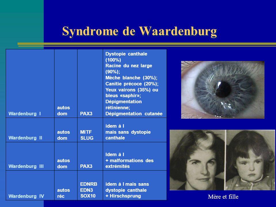 Syndrome de Waardenburg Wardenburg I autos domPAX3 Dystopie canthale (100%) Racine du nez large (90%); Mèche blanche (30%); Canitie précoce (20%); Yeu