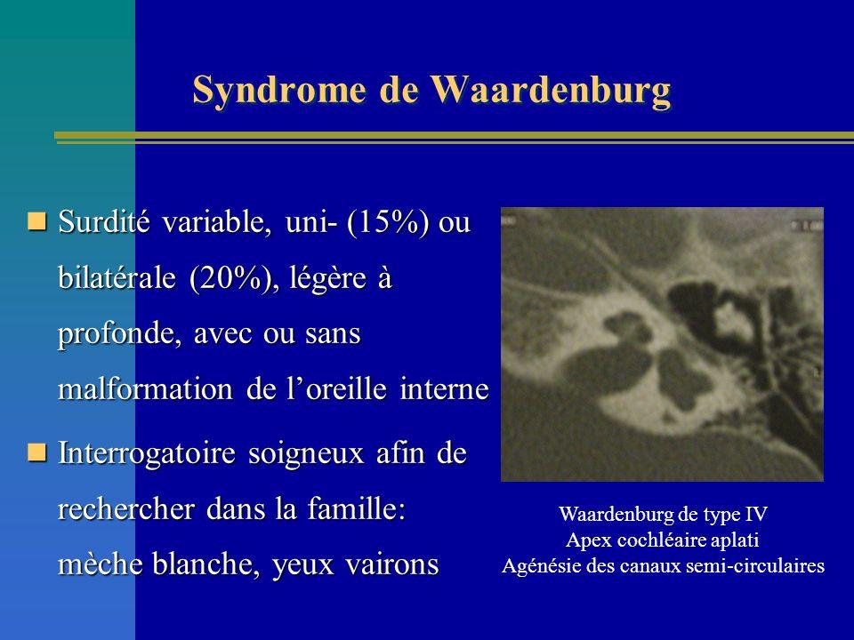 Surdité variable, uni- (15%) ou bilatérale (20%), légère à profonde, avec ou sans malformation de loreille interne Surdité variable, uni- (15%) ou bil