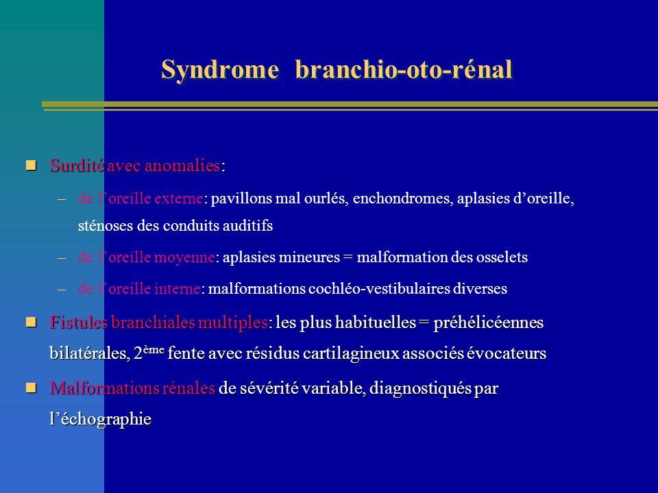Syndrome branchio-oto-rénal Surdité avec anomalies: Surdité avec anomalies: –de loreille externe: pavillons mal ourlés, enchondromes, aplasies doreill