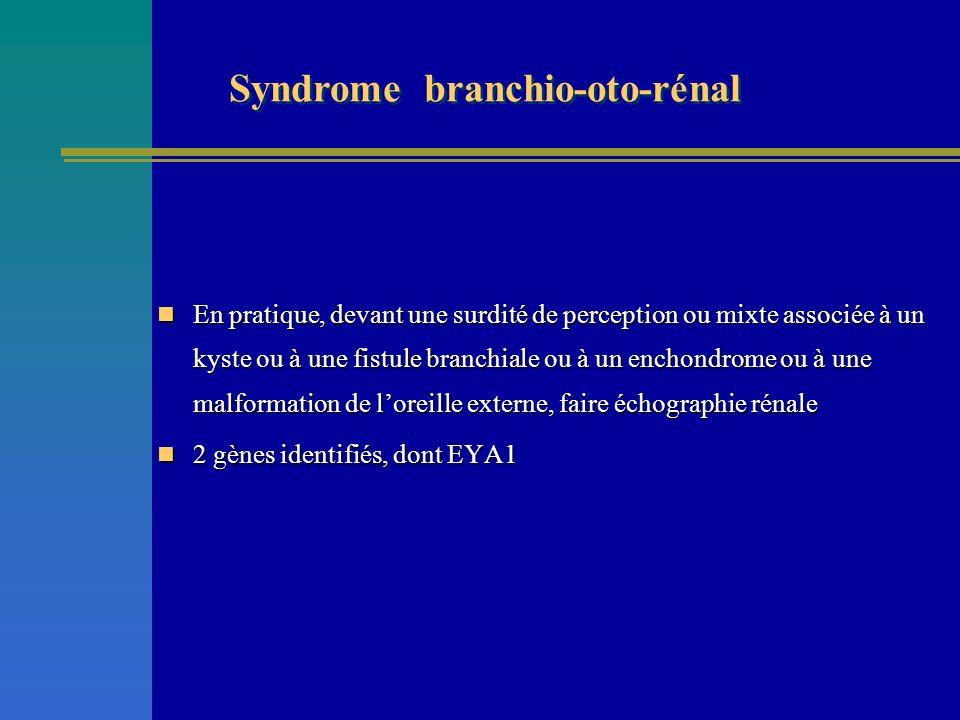 En pratique, devant une surdité de perception ou mixte associée à un kyste ou à une fistule branchiale ou à un enchondrome ou à une malformation de lo