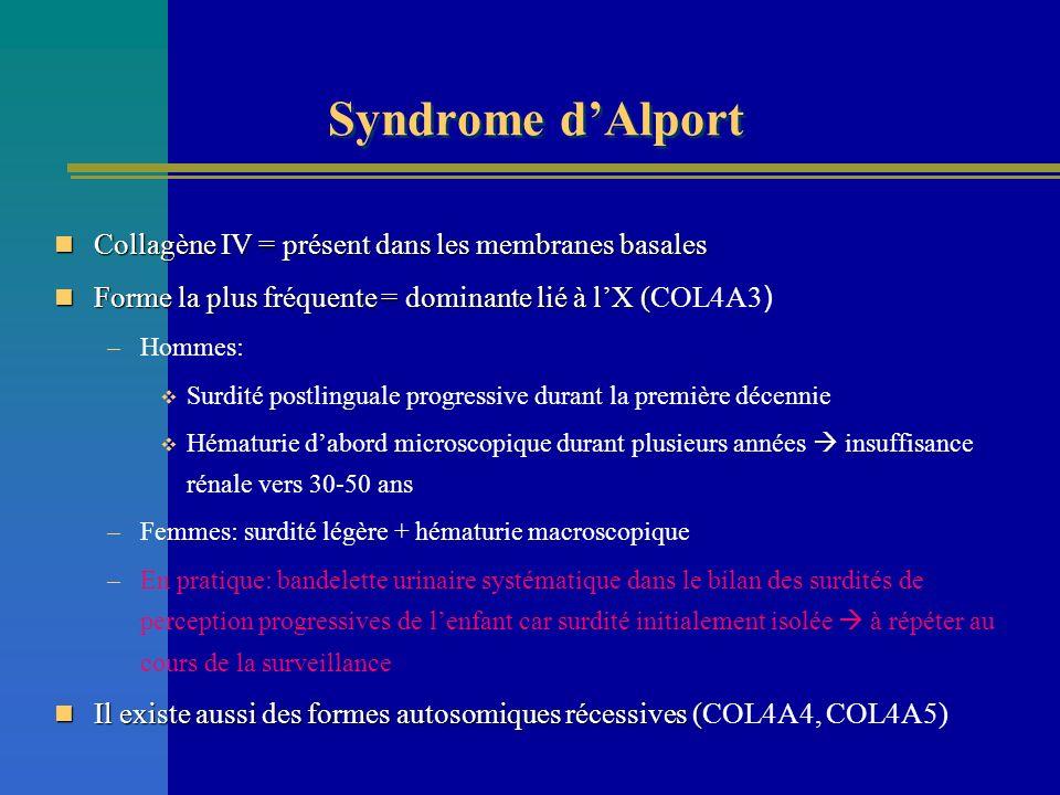 Syndrome dAlport Collagène IV = présent dans les membranes basales Collagène IV = présent dans les membranes basales Forme la plus fréquente = dominan