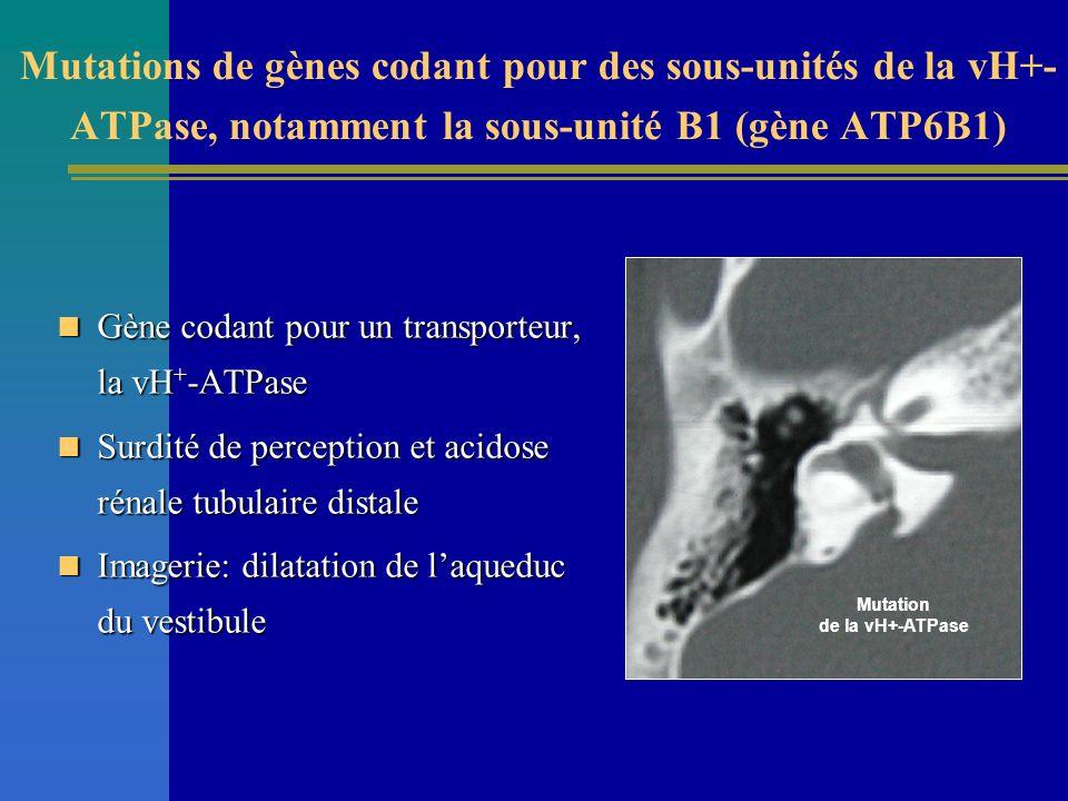 Gène codant pour un transporteur, la vH + -ATPase Gène codant pour un transporteur, la vH + -ATPase Surdité de perception et acidose rénale tubulaire