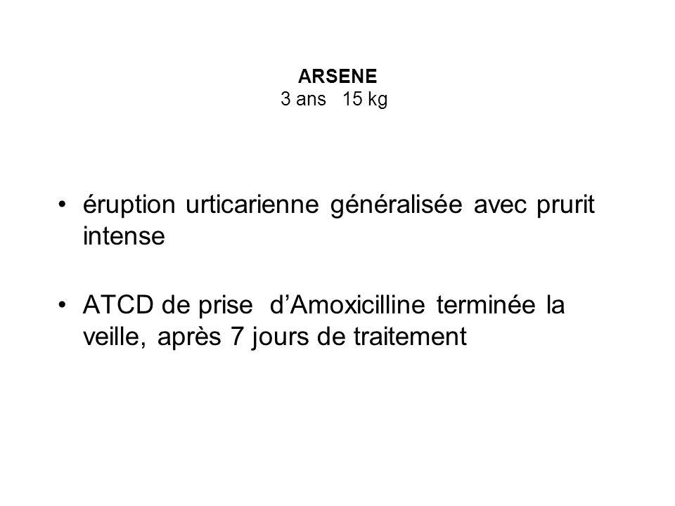 ARSENE 3 ans 15 kg éruption urticarienne généralisée avec prurit intense ATCD de prise dAmoxicilline terminée la veille, après 7 jours de traitement