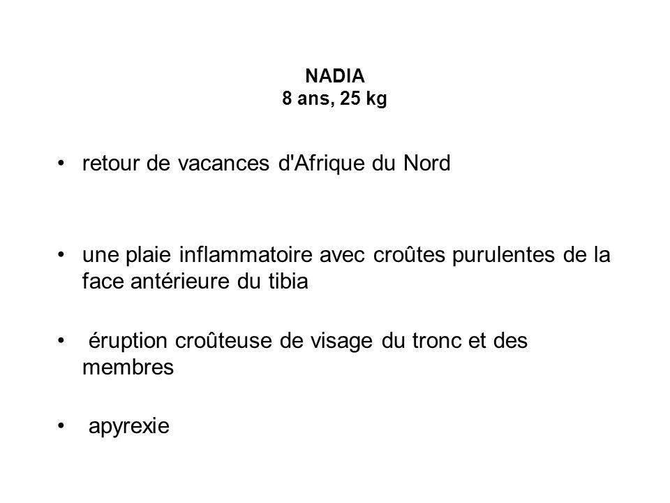 NADIA 8 ans, 25 kg retour de vacances d'Afrique du Nord une plaie inflammatoire avec croûtes purulentes de la face antérieure du tibia éruption croûte