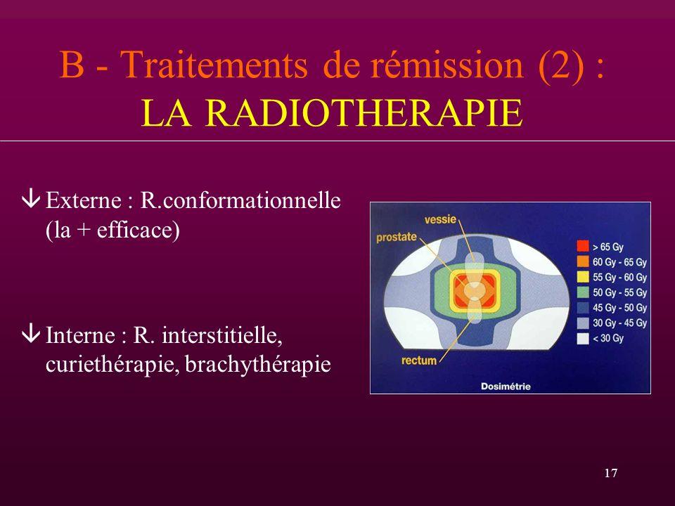 17 B - Traitements de rémission (2) : LA RADIOTHERAPIE âExterne : R.conformationnelle (la + efficace) âInterne : R. interstitielle, curiethérapie, bra