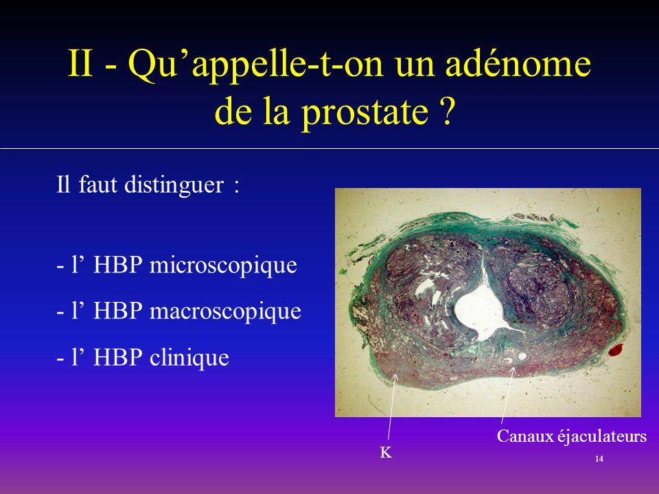 14 II - Quappelle-t-on un adénome de la prostate ? Il faut distinguer : - l HBP microscopique - l HBP macroscopique - l HBP clinique K Canaux éjaculat
