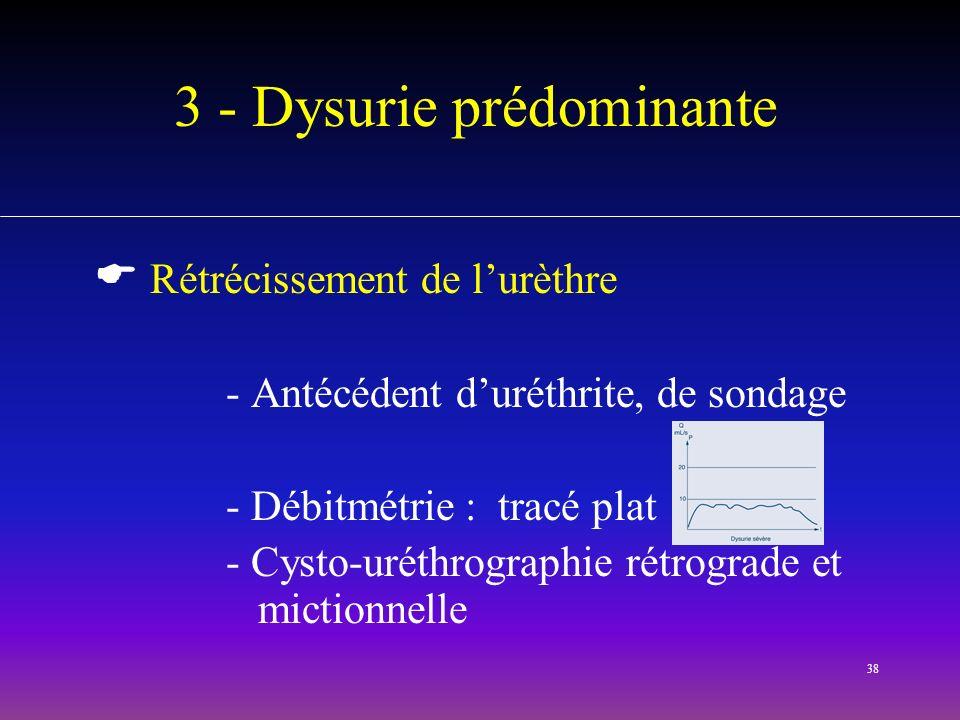 38 3 - Dysurie prédominante Rétrécissement de lurèthre - Antécédent duréthrite, de sondage - Débitmétrie : tracé plat - Cysto-uréthrographie rétrograd