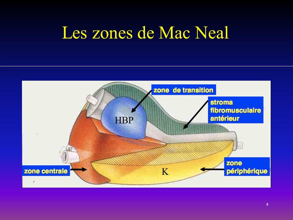 8 Les zones de Mac Neal K HBP