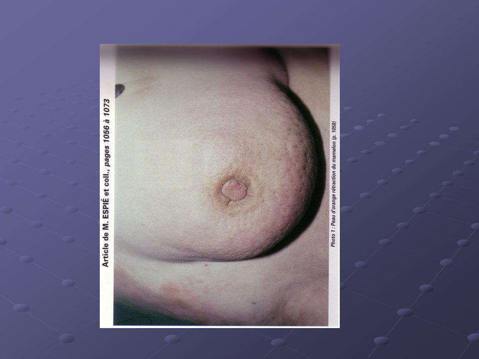 La palpation mammaire Patiente en position couchée, un bras sous la tête.