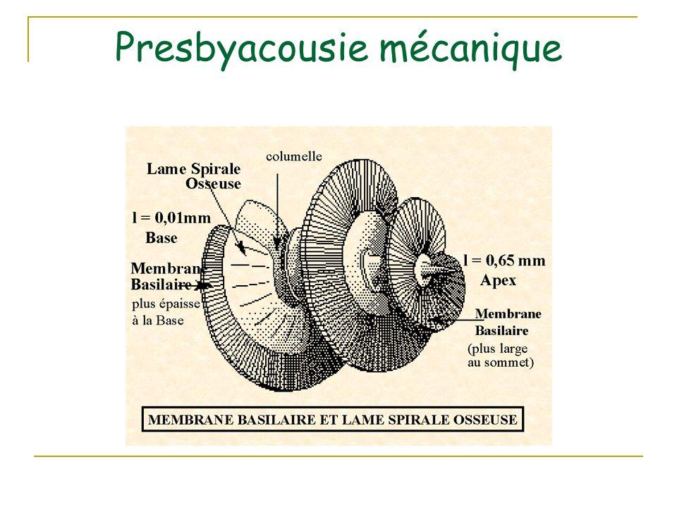 Presbyacousie mécanique