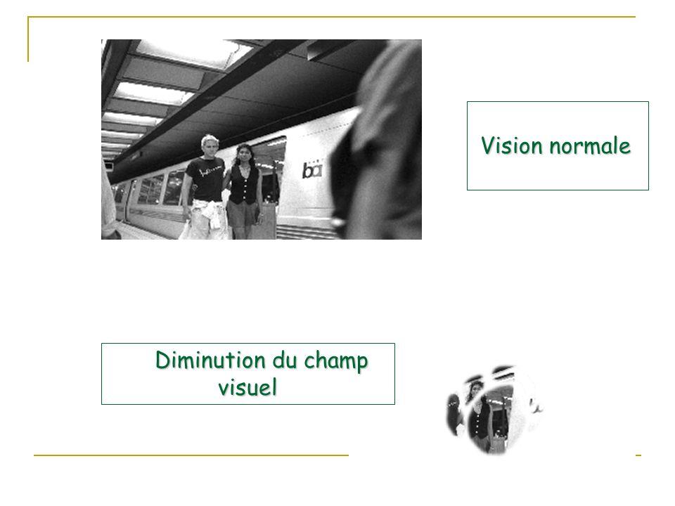 Vision normale Vision normale Diminution du champ visuel Diminution du champ visuel