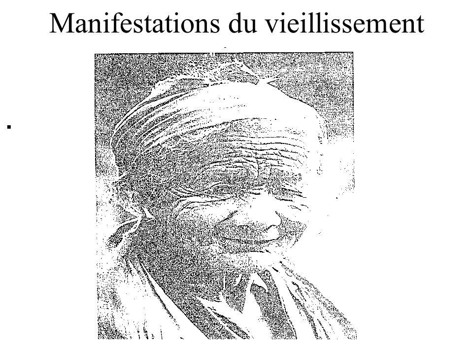 . Manifestations du vieillissement