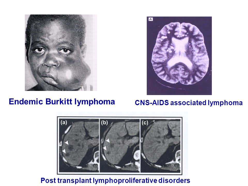 Endemic Burkitt lymphoma Post transplant lymphoproliferative disorders CNS-AIDS associated lymphoma