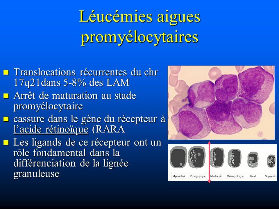 Translocations récurrentes du chr 17q21dans 5-8% des LAM Translocations récurrentes du chr 17q21dans 5-8% des LAM Arrêt de maturation au stade promyél
