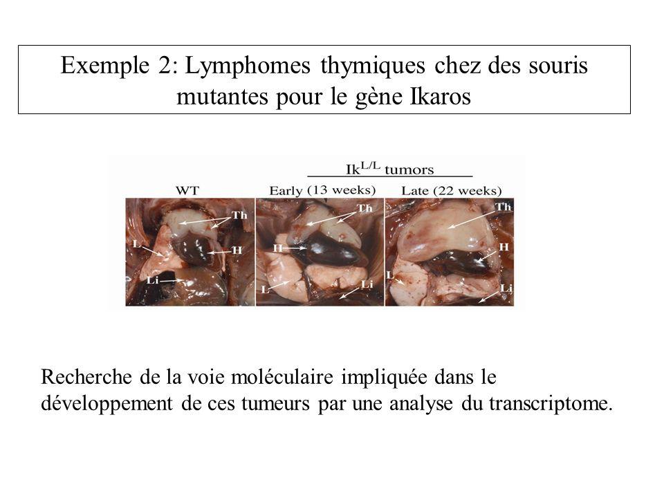 Exemple 2: Lymphomes thymiques chez des souris mutantes pour le gène Ikaros Recherche de la voie moléculaire impliquée dans le développement de ces tu