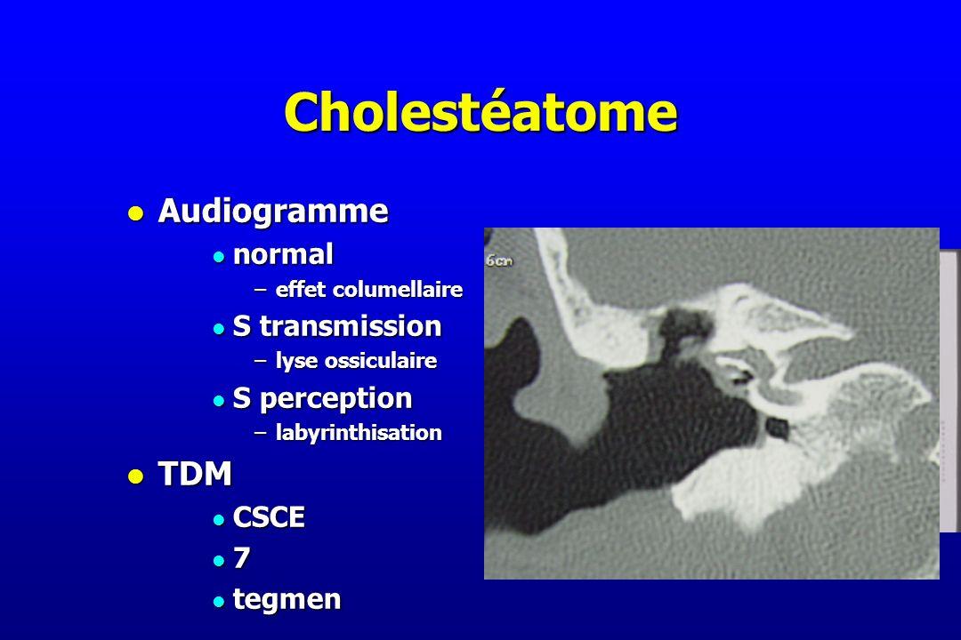 Cholestéatome l Audiogramme l normal –effet columellaire l S transmission –lyse ossiculaire l S perception –labyrinthisation l TDM l CSCE l 7 l tegmen