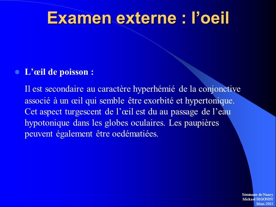 Séminaire de Nancy Mickael SEGONDY Mars 2003 Examen externe : loeil Lœil de poisson : Il est secondaire au caractère hyperhémié de la conjonctive asso
