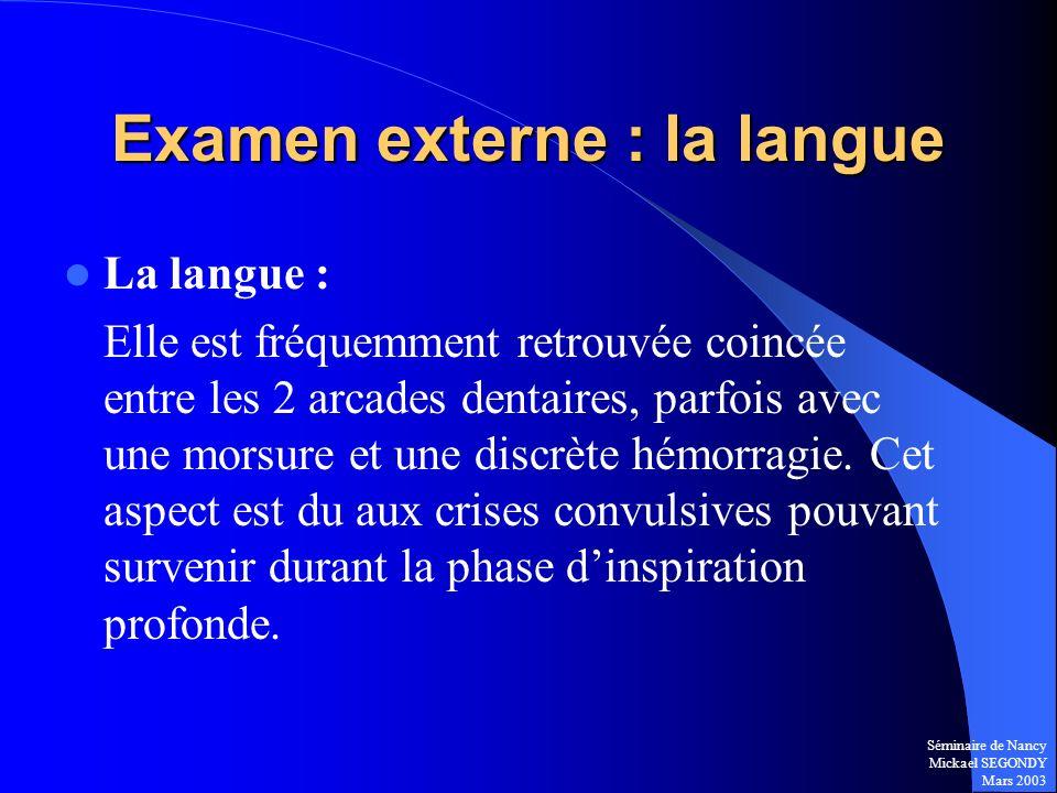 Séminaire de Nancy Mickael SEGONDY Mars 2003 Examen externe : la langue La langue : Elle est fréquemment retrouvée coincée entre les 2 arcades dentair