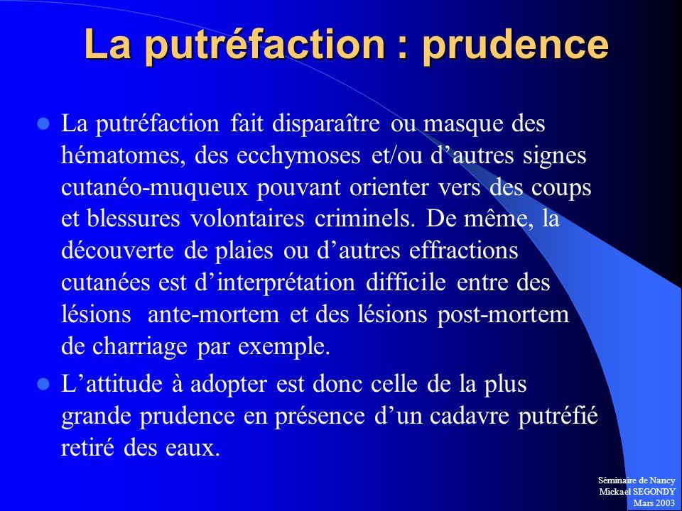Séminaire de Nancy Mickael SEGONDY Mars 2003 La putréfaction : prudence La putréfaction fait disparaître ou masque des hématomes, des ecchymoses et/ou