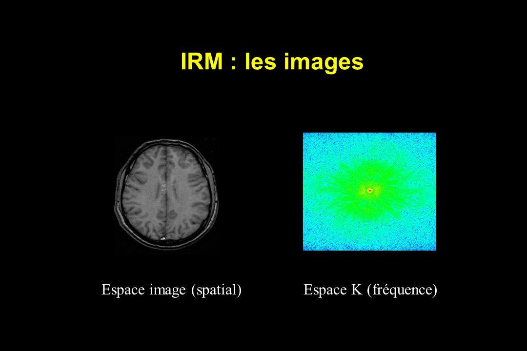 IRM : les images Espace image (spatial)Espace K (fréquence)