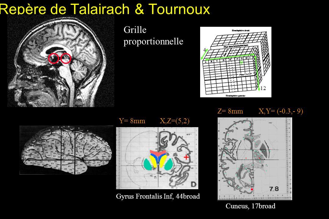 Repère de Talairach & Tournoux Grille proportionnelle 4 9 12 Des repères Z= 8mmX,Y= (-0.3,- 9) Cuneus, 17broad Y= 8mmX,Z=(5,2) Gyrus Frontalis Inf, 44broad