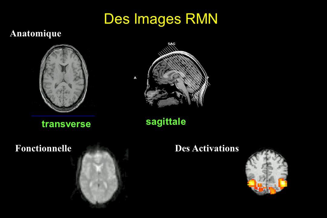 Des Images RMN transverse sagittale Anatomique Fonctionnelle Des Activations