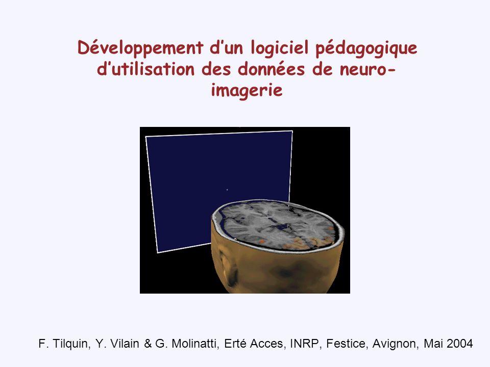 LIRM fonctionnelle Principe de construction des images cérébrales Kwong & al.