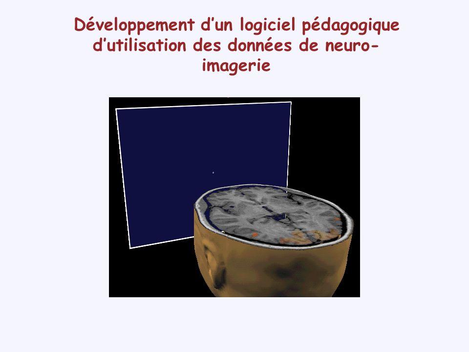 Développement dun logiciel pédagogique dutilisation des données de neuro- imagerie