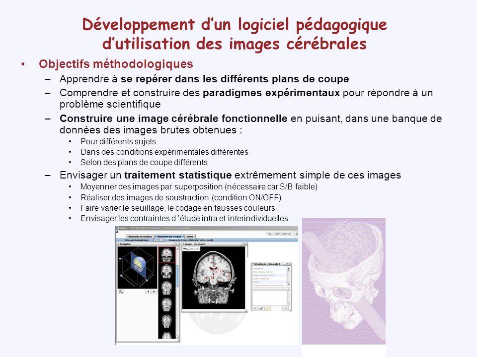 Développement dun logiciel pédagogique dutilisation des images cérébrales Anatomie normalisée Image fonctionnelle Données d acquisition Moyenne séquence Test T Anatomie non normalisée