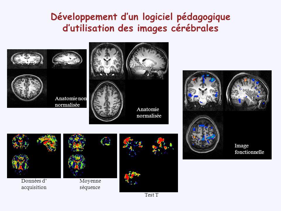 Développement dun logiciel pédagogique dutilisation des images cérébrales Objectifs de connaissance Spécialisation fonctionnelle de certaines aires cérébrales et activation coordonnée de différentes aires cérébrales Organisation anatomo-fonctionnelle des aires sensorielles et motrices primaires : somatotopie, rétinotopie (sélection dune région dintérêt) Variabilité interindividuelle à la fois sur le plan anatomique et fonctionnel Plasticité anatomique et fonctionnelle avant la greffe 6 mois après recouvrement Activation de la main droitemain gauche Réorganisation du cortex cérébral après amputation et greffe des deux mains Angela Sirigu, Institut des sciences cognitives (Bron)