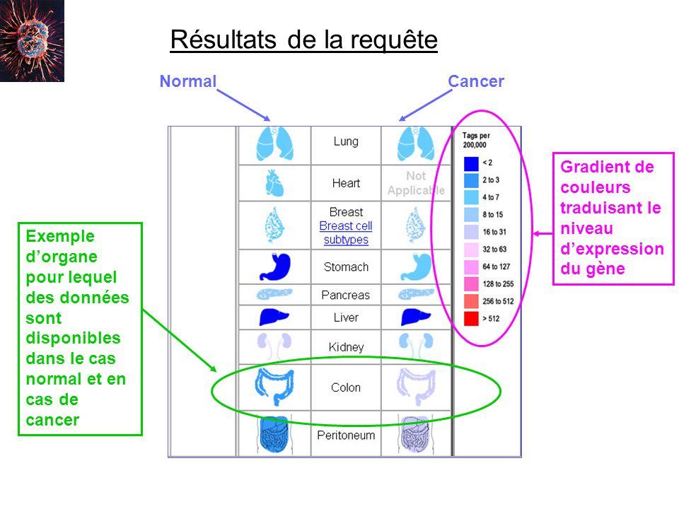 Résultats de la requête NormalCancer Gradient de couleurs traduisant le niveau dexpression du gène Exemple dorgane pour lequel des données sont dispon