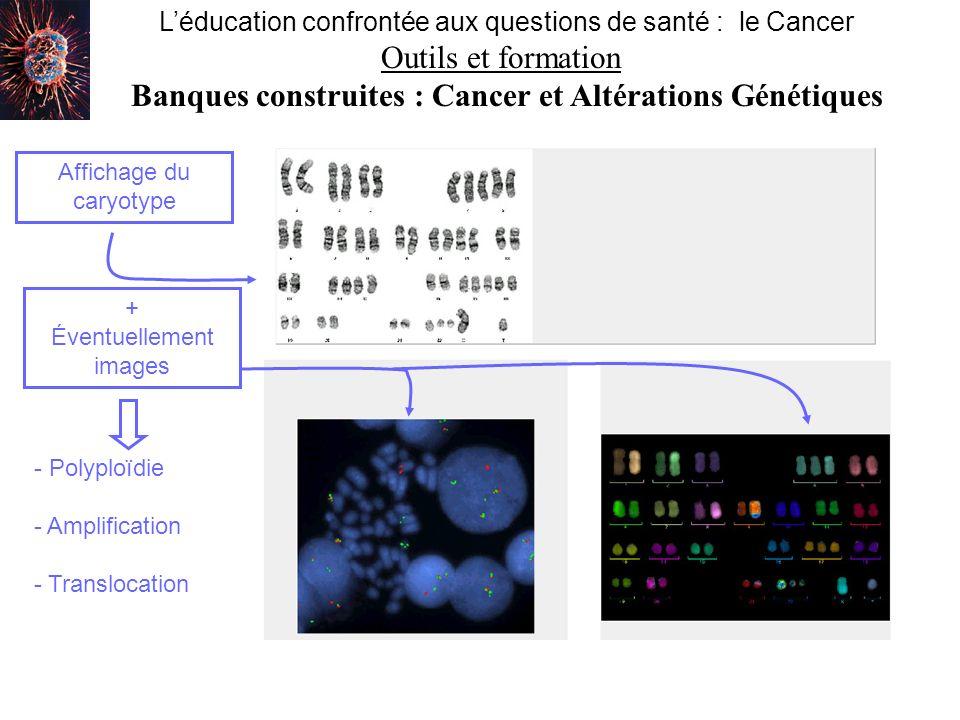 Léducation confrontée aux questions de santé : le Cancer Outils et formation Banques construites : Cancer et Altérations Génétiques Affichage du caryo